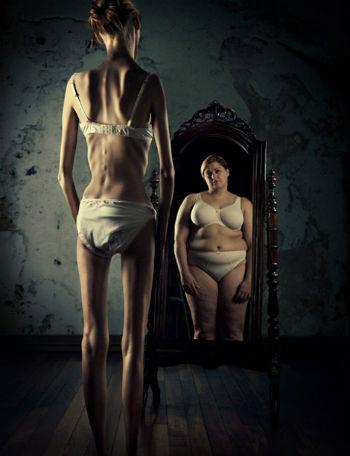 anoressica-allo-specchio2